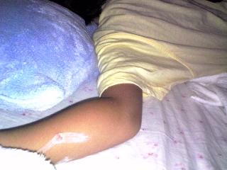 腕にできた水疱瘡の水泡